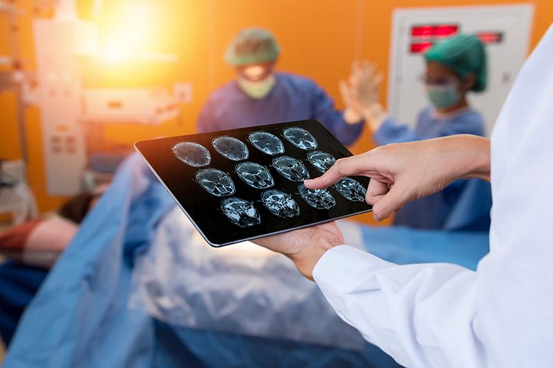 เนื้องอกในสมอง โรคร้ายที่ผลาญค่ารักษาก้อนโต