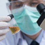 ดื่มน้ำปัสสาวะ ยาอายุวัฒนะ บำบัดโรคได้จริงหรือ