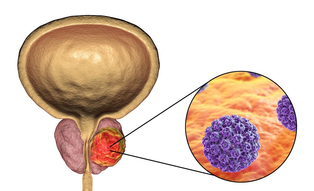 ระยะของมะเร็งต่อมลูกหมาก